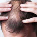 Alopecia androgenetica precoce 150x150 - Caduta dei capelli precoce, cosa fare quando succede?